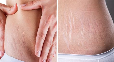 collagen and stretch marks picture 1