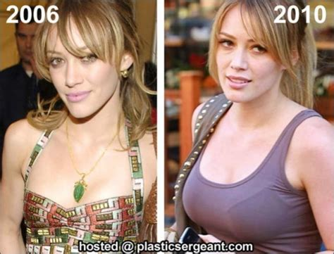 breast enhancement 400cc picture 6