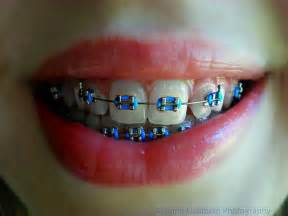 blue teeth picture 2