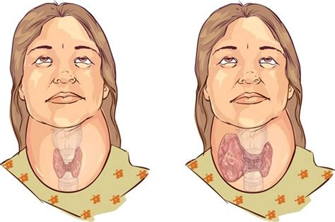 thyroid enlargement goiter picture 1