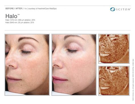 find at less cost the fractional laser for picture 5