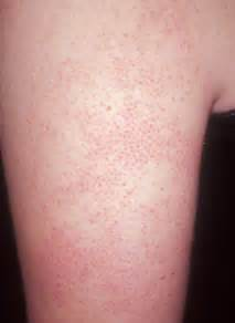upper arm acne picture 6