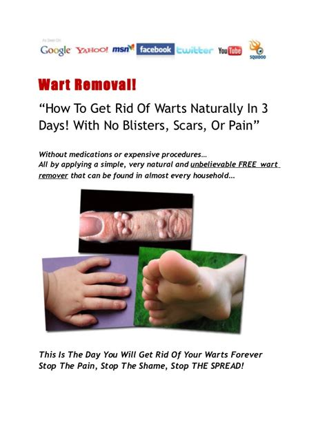 wart no more picture 11