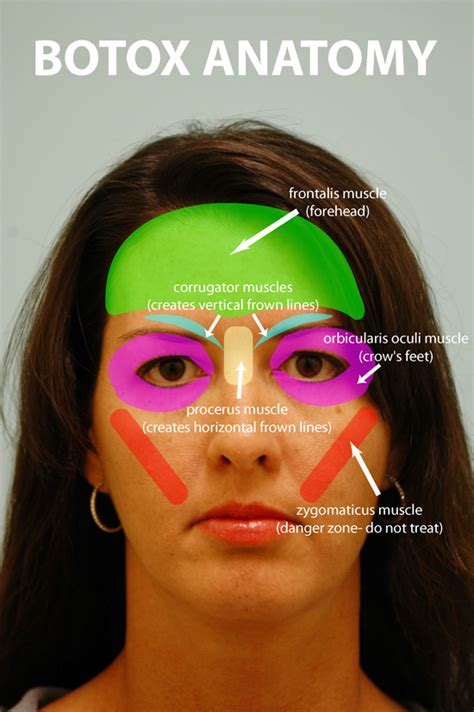 lower eyelid surgery muscle atrophy picture 11