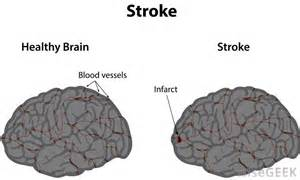 brain stroke and weight loss picture 3