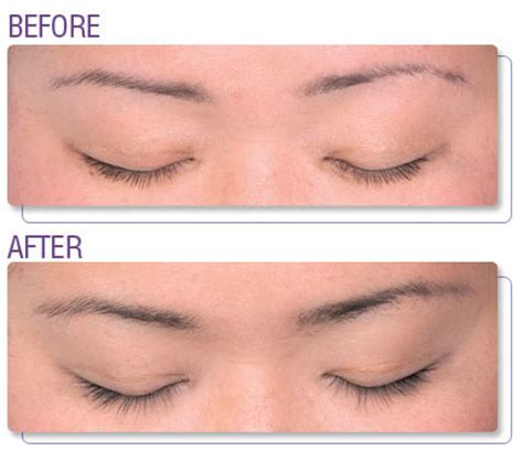 eyelash growth serum shoppers drug mart picture 18