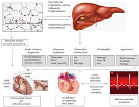 alcoholic liver diseases picture 2
