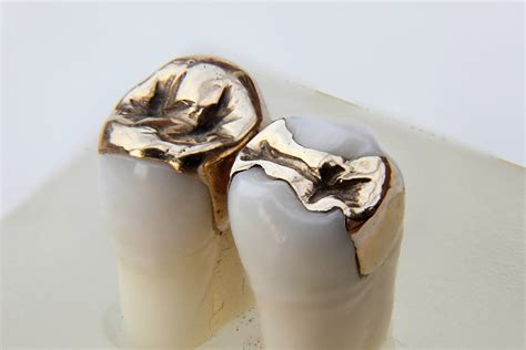 teeth covers for teeth picture 3
