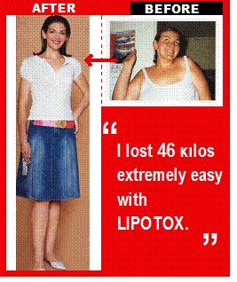 lipotox weight loss picture 3