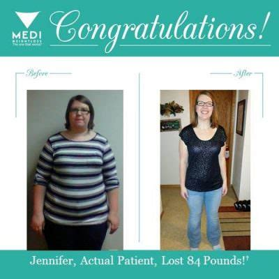 weight loss centers wallingford ct picture 6