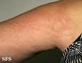 hives burning in side swelling picture 9