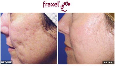 fraxel for acne scars picture 11