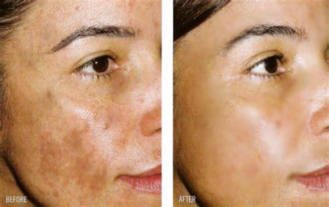 donde puedo conseguir la crema skin whitening picture 1