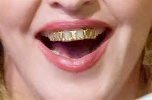 all teeth grillz picture 6