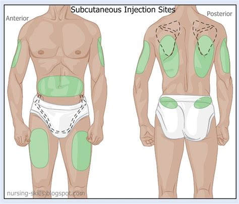 subcutaneous testosterone implants picture 6