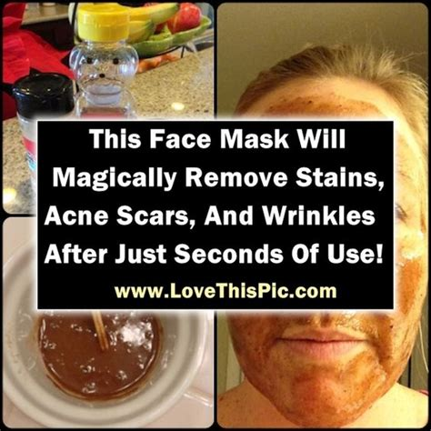 is vitamin e good for wrinkles and acne scars picture 5