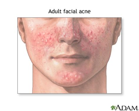 acne stopped after hysterectomy picture 11