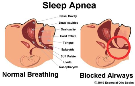 can sleep apnea lead to bad breath picture 12