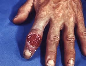 hand to vagina hiv hhh picture 15