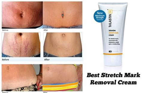 removing old stretch marks picture 5