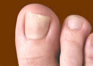 can candida cause toe nail fungus picture 6