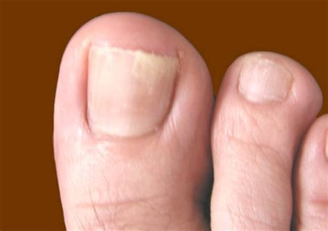 apple cider vinegar for nail fungus picture 10