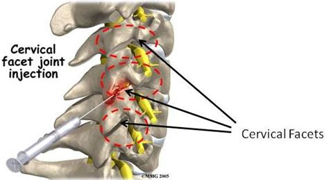 facet joint nerve ablation picture 2