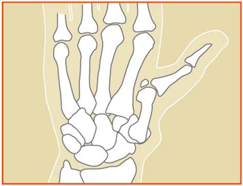 women joint pain symptom picture 9