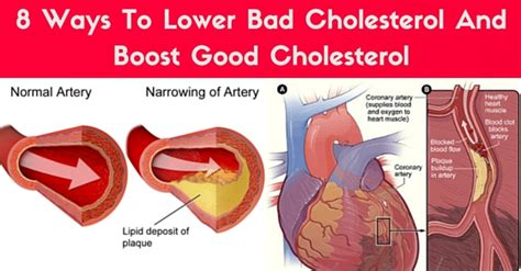 what is the connection between bile and high blood cholesterol picture 14
