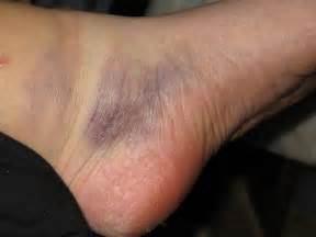 leg muscle hematoma picture 11