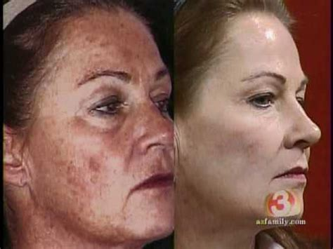 can a co2 total fx full face laser picture 10