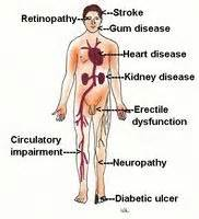what effects does diabetics with circulation picture 5