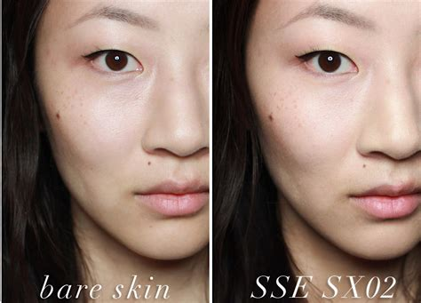 acne scarring pictures picture 3