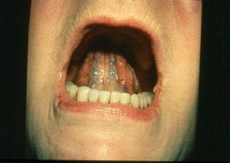 picture of roots of the eye teeth picture 5