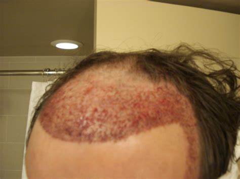 avodart hair loss results picture 13