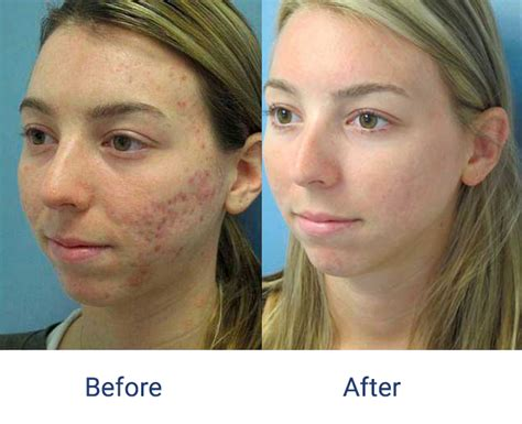 fraxel laser for acne scarring picture 10