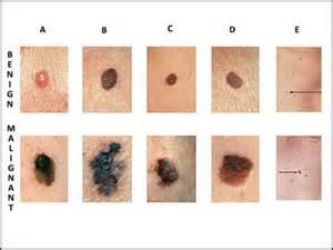 dermatologist skin of color picture 11