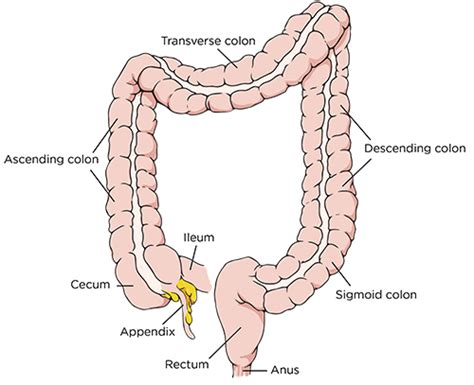 diet with colon surgery picture 22