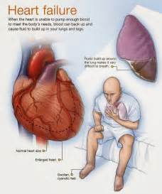 weight gain and heart failure picture 19
