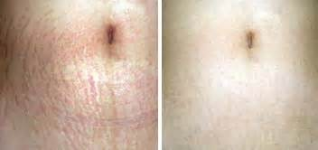 stretch marks cream - for prevention and reduction picture 7
