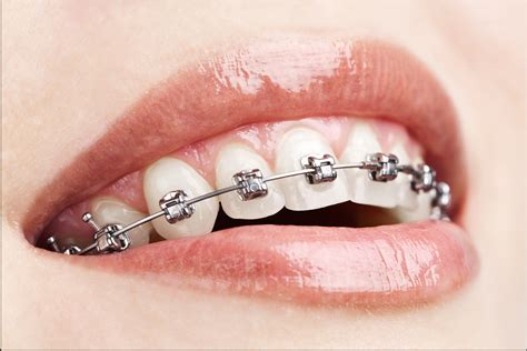 teeth braces picture 7