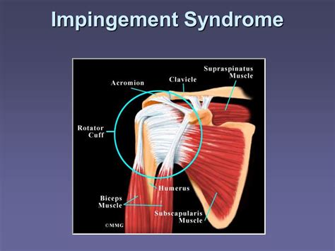 joint impingement syndrome picture 2