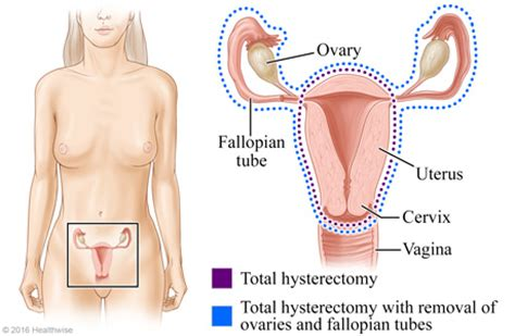 aging after full hysterectomy picture 11