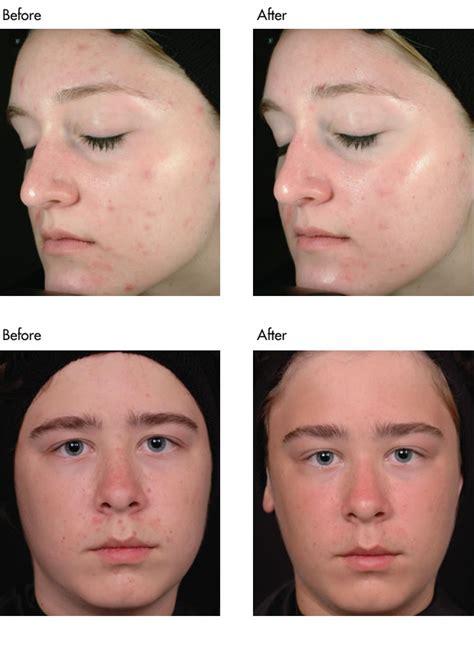 obagi acne picture 6