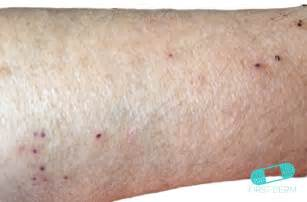 itching skin causes picture 7