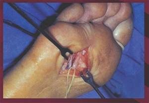 metatarsal pain relief picture 9