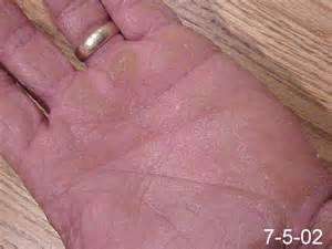all types of finger nail fungus picture 3