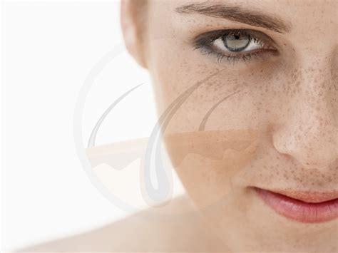 skin getting darker picture 3