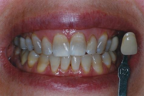 antibiotic discoloring teeth picture 15