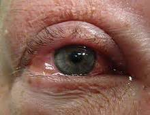 bacterial conjunctivitis and sore throat picture 6